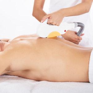 Ein IPL Gerät zur Haarentfernung wird auf dem Rücken eines Mannes angewendet
